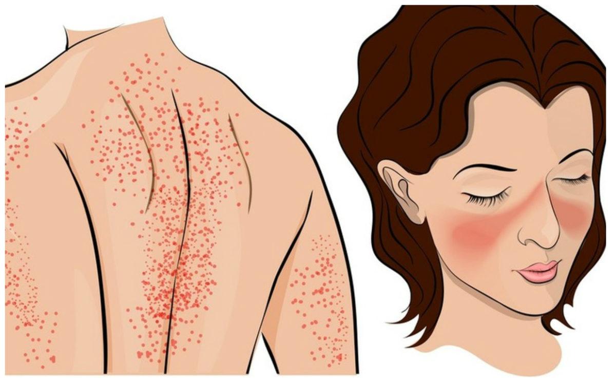 Lupus-saiba-mais-sobre-a-doenca-que-atinge-mulheres-1200x744.jpg
