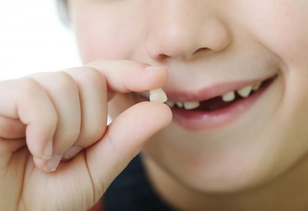 dente-de-leite-foto.jpg