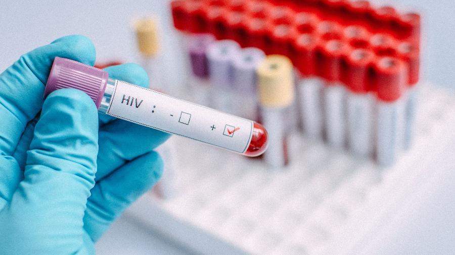 Teste-HIV.jpg