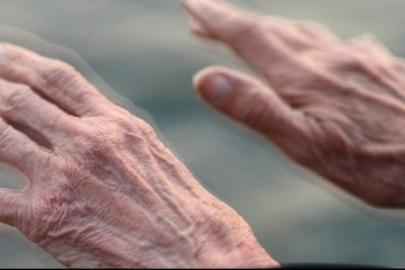 Parkinson-foto.jpg