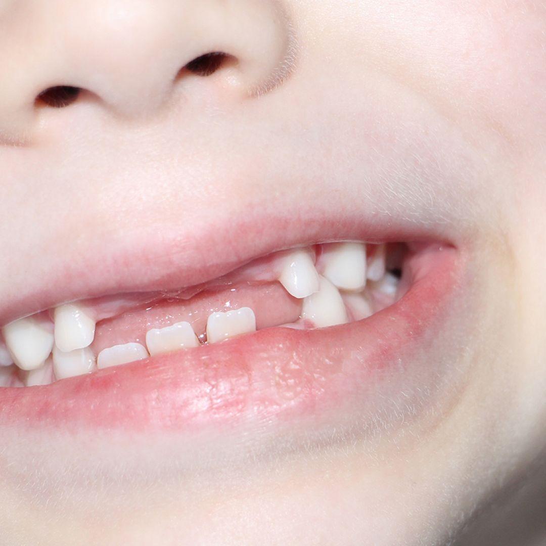 dente-leite-crianca-0619-1400x800.jpg